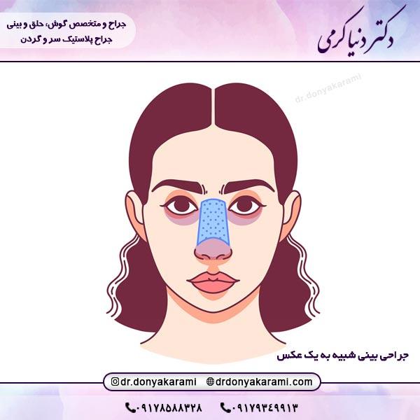 جراحی بینی شبیه به یک عکس