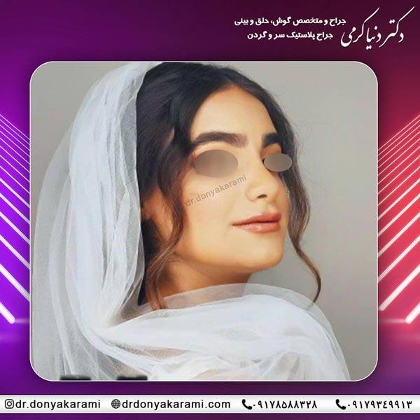جراحی زیبایی بینی شیراز