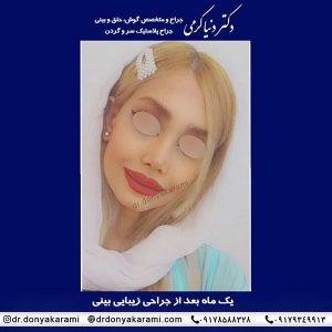بهترین جراح بینی شیراز