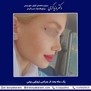 جراحی بینی شیراز